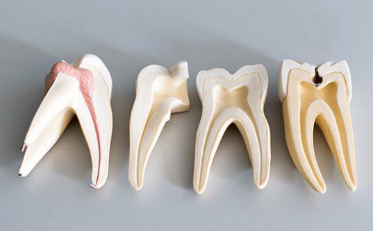 Micro Endodontic Procedures