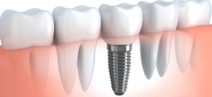 dental implants in sharjah