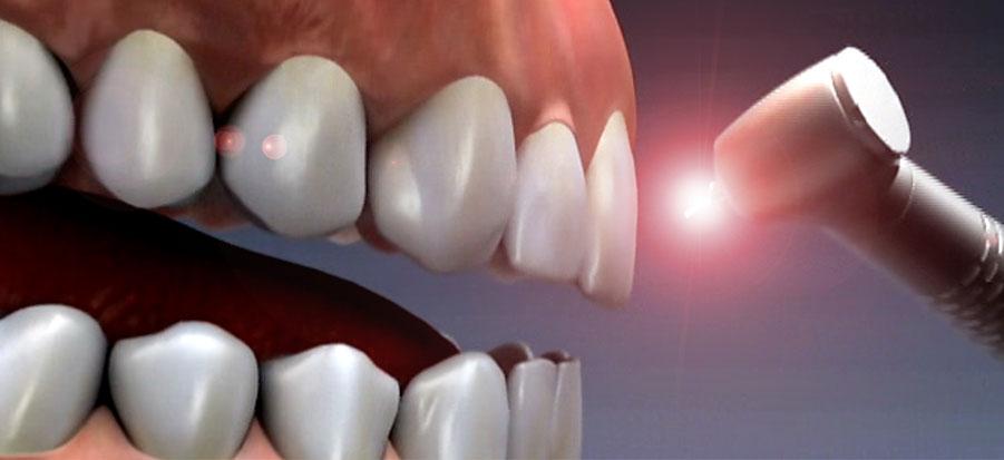 Laser Dentistry Sharjah