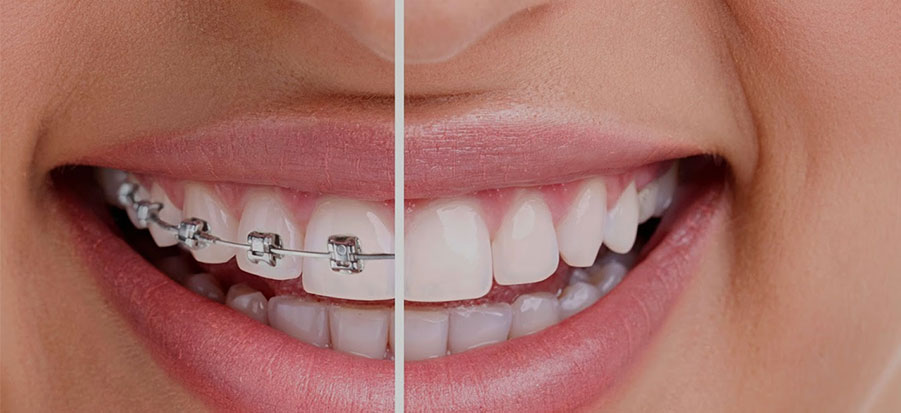 Best Orthodontist in Sharjah