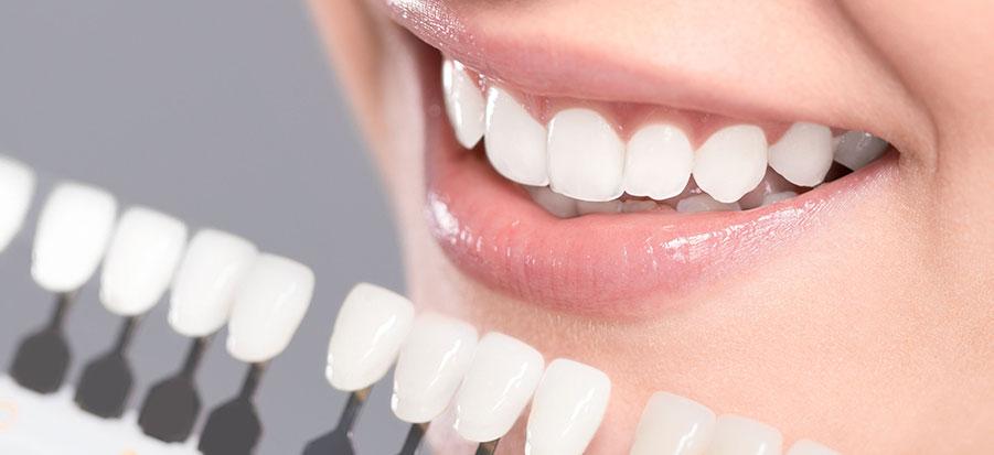 zoom teeth whitening sharjah