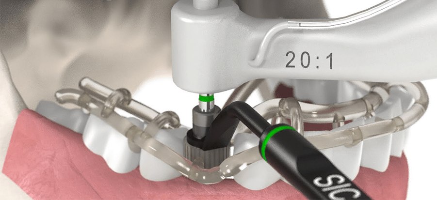 Dental Implants Clinic in Sharjah