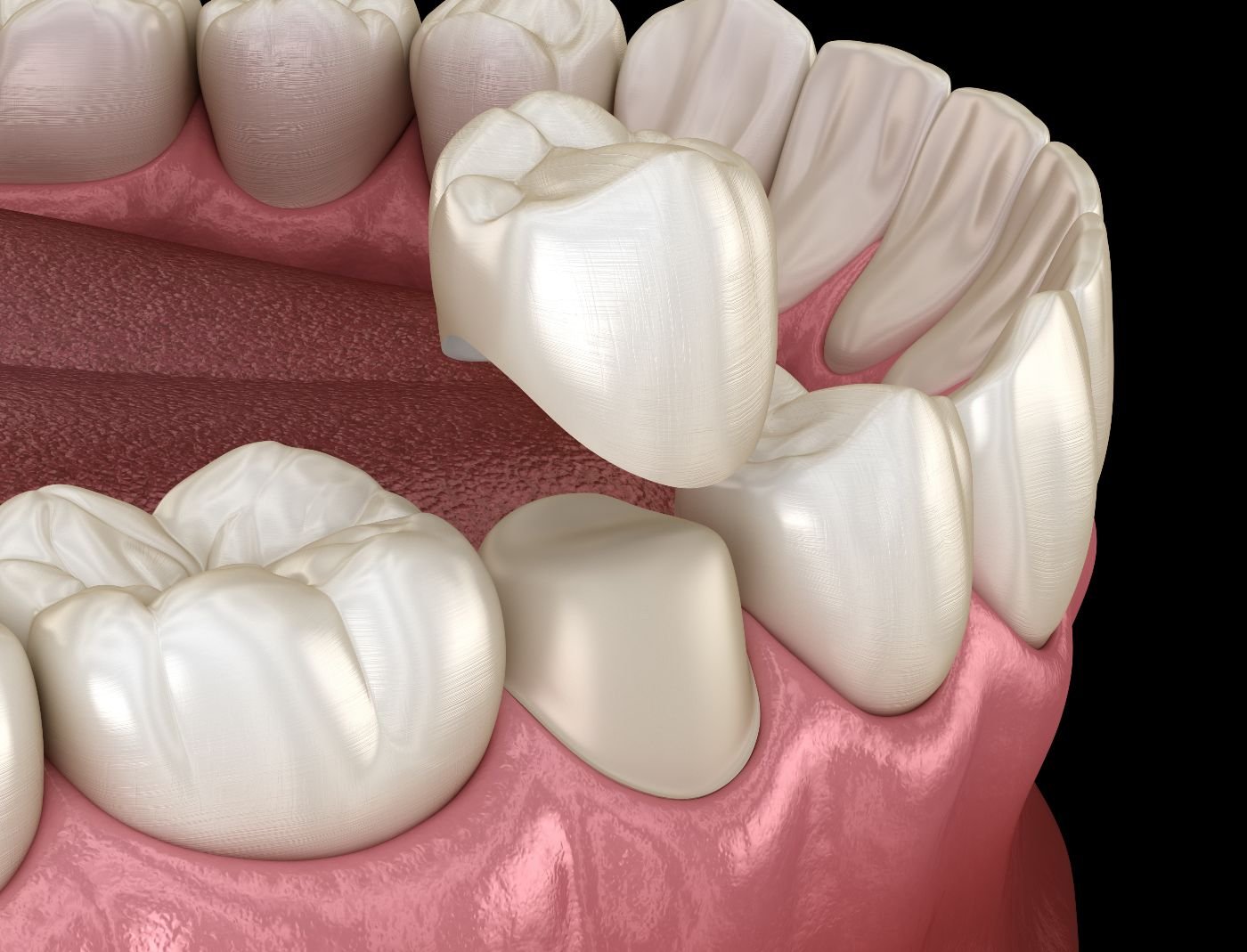 Why Crowns are Advised After Root Canal?