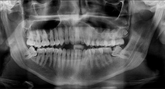 dental radiology diagnostics sharjah