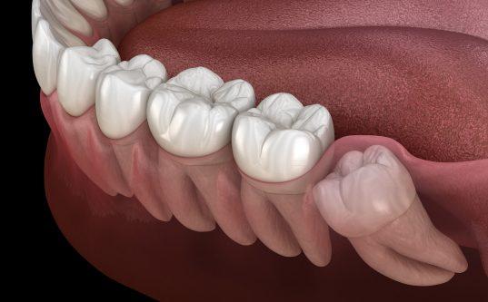 Oral Surgery sharjah