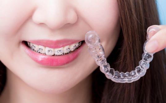 orthodontist in sharjah